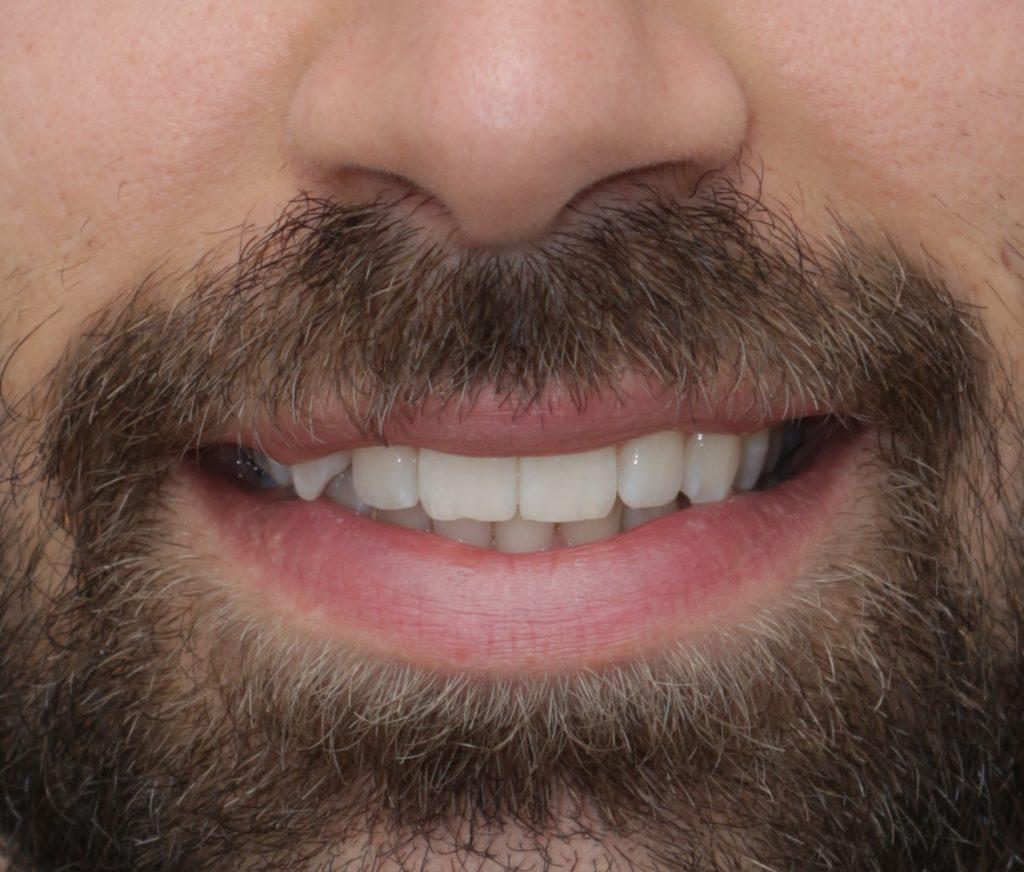 Οδοντίατρος Αλεξανδρούπολη Σαράντης Α. Τσιρτσίδης