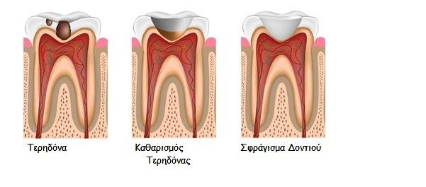 Σφραγίσματα – Σαράντης Α. Τσιρτσίδης – Χειρουργός Οδοντίατρος ... 1b83dee3d0e